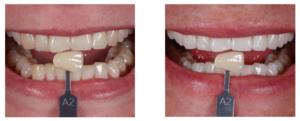 Hampaiden Valkaisu - Top 5 kysymystä