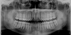Hampaiden röntgenkuvaukset